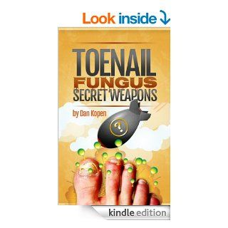 Toenail Fungus Secret Weapons: Real Treatment Methods They Don't Want You To KnoweBook: Dan Kopen: Kindle Store
